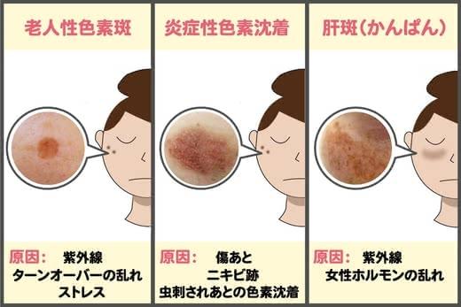 シミ化粧水