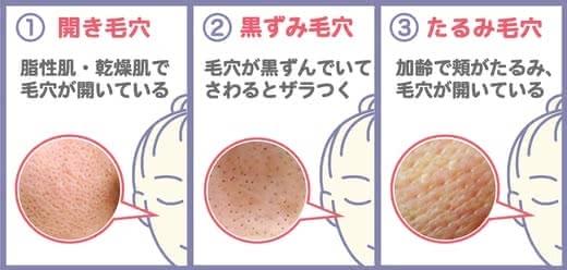毛穴化粧水