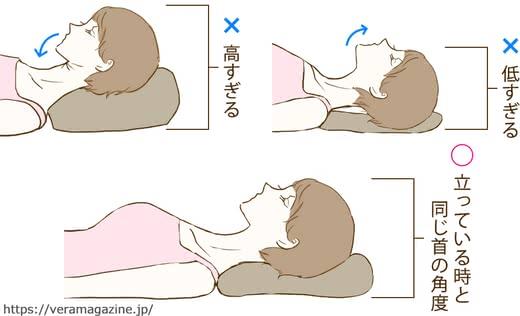 首のしわの原因と改善