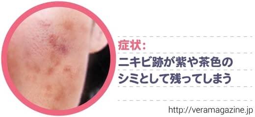 ニキビ跡,化粧水